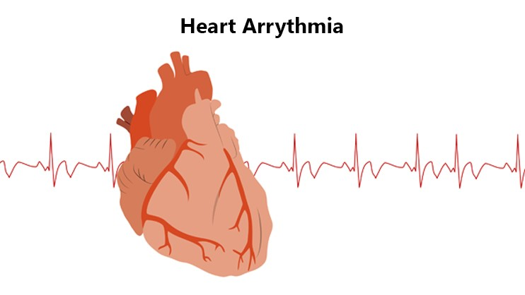 Which Drug Types are Used to Treat Arrhythmia
